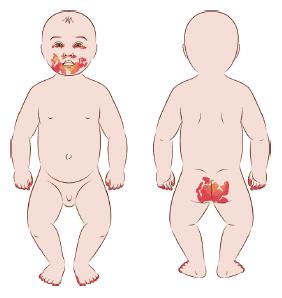 Dermatite da pannolino: scopri le cause, come prevenirla e curarla