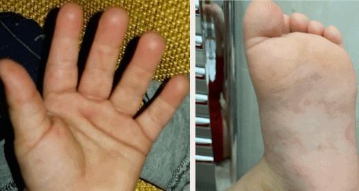 Bocca mani piedi: tutto quello che c'è da sapere