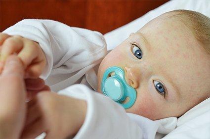 Sesta malattia: sintomi, contagiosità, quando chiamare il pediatra?